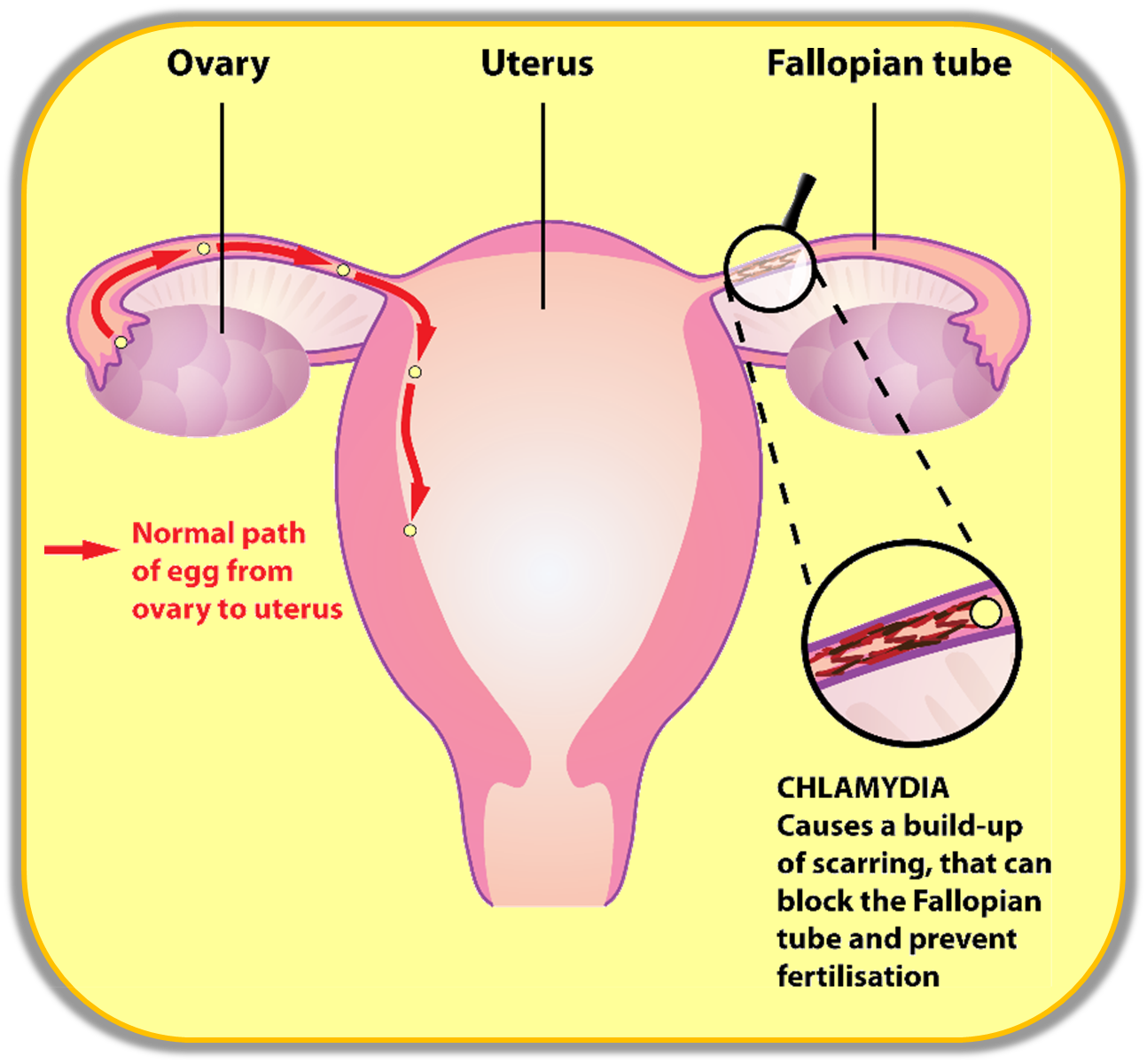 Blocked Fallopian Tubes Causes Symptoms and Treatments